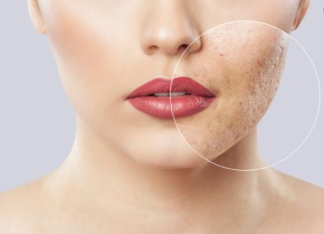 10 ways to treat acne scars!
